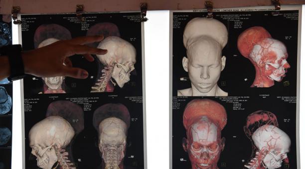 Los gliomas causan el 7 por ciento de las muertes por cáncer. Foto: AFP