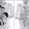 Comparación de la tomografía por emisión de positrones (PET) al inicio (izquierda) y después de meses infectado con SARS-CoV-2 (derecha).