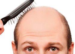 Elaborar sustituto del cabello es solo uno de las aplicaciones de esta técnica. También podría también utilizarse en la fabricación de toda clase de fibras.