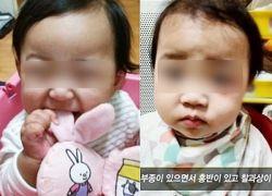 La pequeña, de nombre Jung-in, fue adoptada en febrero del año pasado y murió en octubre. Foto: Cortesía