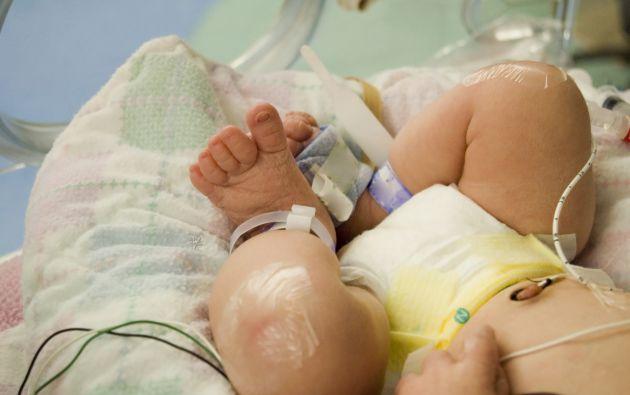 La bebé está en el Hospital Francisco de Ycaza Bustamante. Foto: Internet