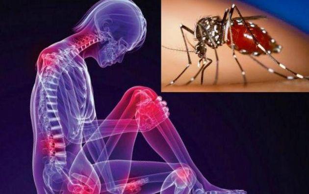 No existen medicamentos antivirales para tratar la fiebre chikunguña, solo reposo, hidratación y acetaminofén.