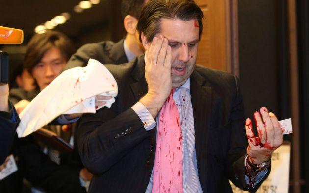 Lippert sufrió heridas en el rostro y en la mano izquierda. Se recupera en un hospital. Foto: REUTERS