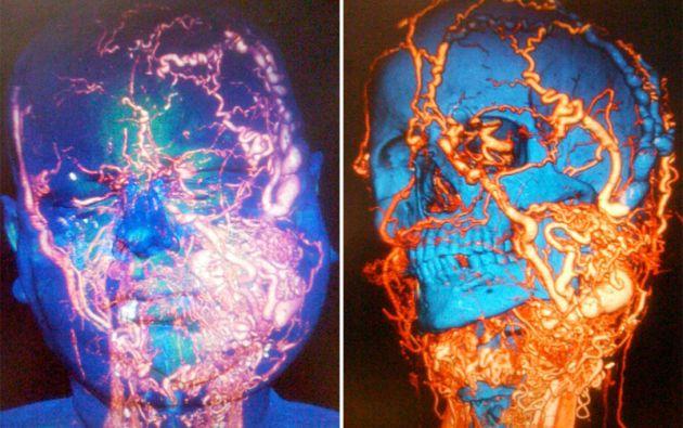El paciente padecía hace 20 años una malformación masiva arteriovenosa que le había provocado una deformación progresiva de la cara.  Fotos: Hospital Vall d'Hebron