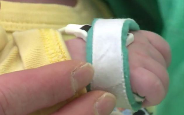 La historia de Kamil y su final feliz da a los médicos esperanzas de salvar más bebés en un futuro.