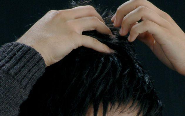Al injertar por ejemplo 200 cabellos en un tramo y con una densidad particular, los científicos fueron capaces de regenerar hasta 1.200 cabellos.