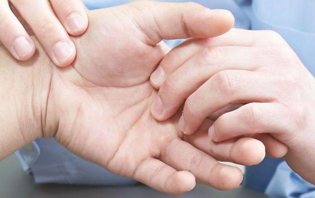 Cuando hay un retraso en el tratamiento de enfermedades reumáticas se pueden presentar deformidades o discapacidades.
