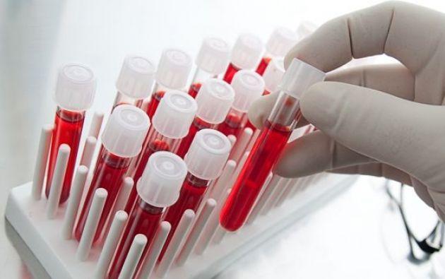 La prueba caracteriza el espectro completo de respuestas generadas por las células del sistema inmunitario encargadas de producir anticuerpos contra los virus.