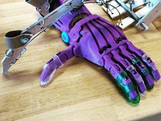 Las prótesis elaboradas con esta tecnología solo cuesta entre 55 y 220 dólares, según el tamaño de la mano.