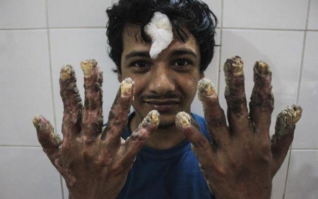 """BANGLADESH.- Después de una decena de operaciones quirúrgicas, Abul Bajandar, de 27 años, afronta ahora un proceso de """"embellecimiento"""". Foto: EFE"""