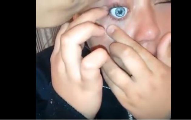 Una joven brasileña quería tener los ojos verdes, y para conseguirlo no se le ocurrió mejor idea que quitar las cuencas oculares de una muñeca, e introducírselas en las suyas.