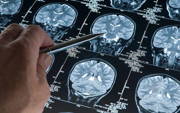 El Alzheimer es una patología neurodegenerativa y de la edad, caracterizada por una pérdida progresiva de la memoria y otros déficit cognitivos. Foto: Internet