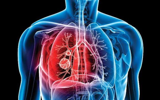 Según datos de la Organización Mundial de la Salud, 1,8 millones de personas murieron por culpa de la tuberculosis en 2015 en todo el mundo.