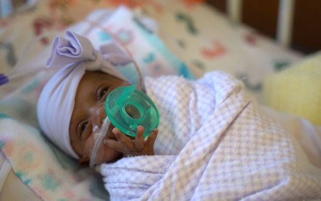 Saybie nació por una cesárea de emergencia con 23 semanas y tres días de gestación. Foto: AFP.