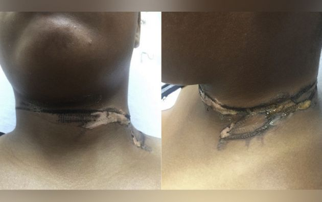 El dispositivo produjo una descarga eléctrica al entrar en contacto con una cadena metálica que cargaba la joven. Foto: Twitter @EmergencyDocs.