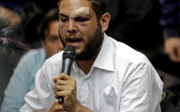 Juan Requesens fue encarcelado acusado de atentar contra el presidente venezolano Nicolás Maduro. Foto: Reuters.