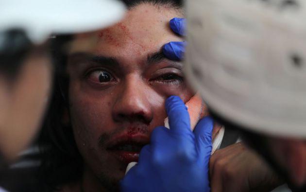 Más de 200 manifestantes han resultado con serias lesiones oculares por el uso de perdigones. Foto: Reuters.
