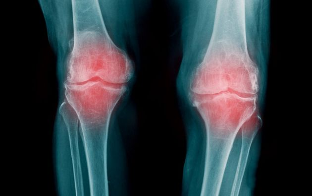Científicos descubren que la combinación de dos medicamentos podría revertir la artrosis.