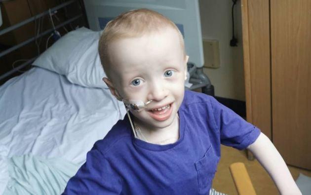 Archie Wilks tiene 4 años y nació en Gran Bretaña. Mientras luchaba contra el cáncer, se contagió de COVID-19, al cuál ya venció. Solo le queda uno por ganar.
