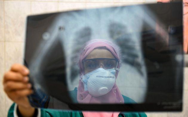 Desde el comienzo de la epidemia se contabilizaron más de 2.636.740 casos de contagio.  Foto: AFP