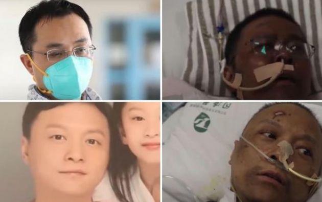 Los médicos chinos Yi Fan y Hu Weifeng despertaron en el hospital con la piel oscurecida tras superar la fase crítica de la enfermedad.