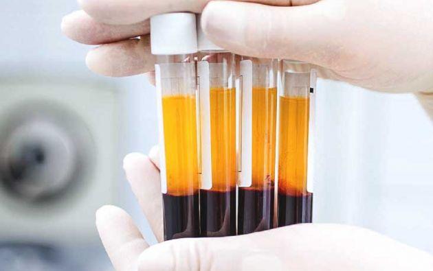 El plasma contiene los antincuerpos o inmoglubinas que permiten a un paciente neutralizar algún tipo de virus, como es el caso del coronavirus. El plasma convaleciente se obtiene separando las células del líquido sanguíneo.