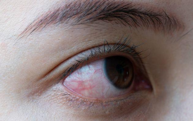 a investigación ha revelado una prevalencia de conjuntivitis del 11,6% en pacientes hospitalizados por covid-19.. Foto: Freepik