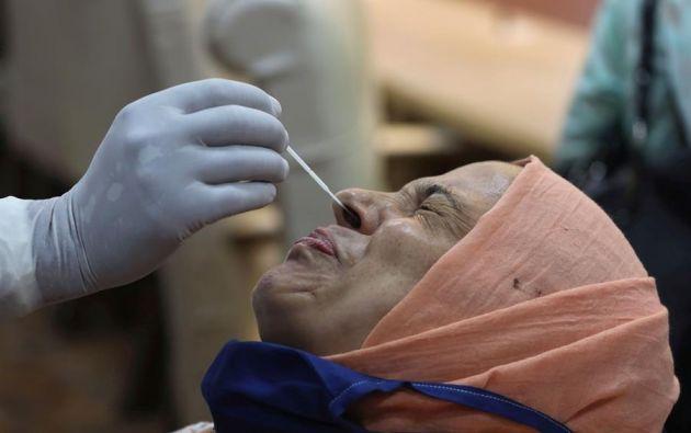 Después de la prueba de hisopado nasal, una mujer de unos 40 años presentó rinorrea unilateral, sabor metálico, dolor de cabeza, rigidez de cuello y fotofobia. Foto: EFE