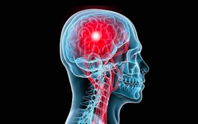 Este 29 de octubre es el Día Mundial del Accidente Cerebrovascular (ACV).
