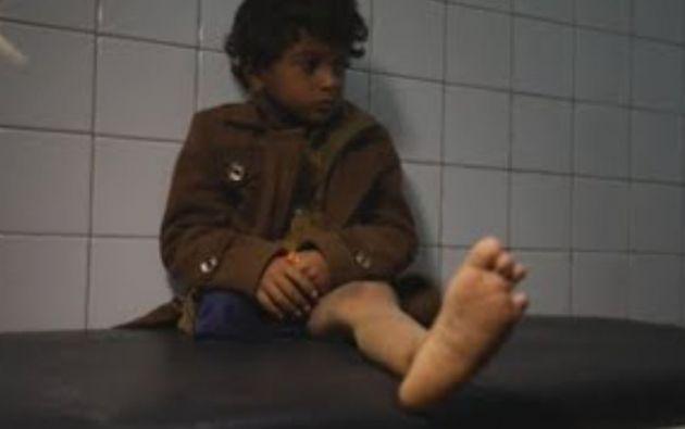 Ammar tuvo la fortuna de sobrevivir, pero perdió la pierna derecha.