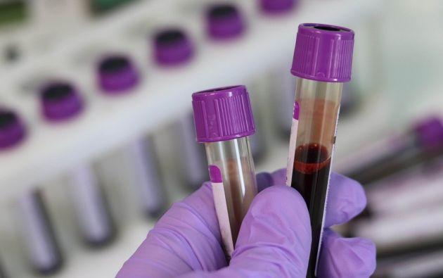 El equipo analizó cómo el RBD del SARS-CoV-2 interactuaba con cada tipo de sangre. Foto: Pixabay