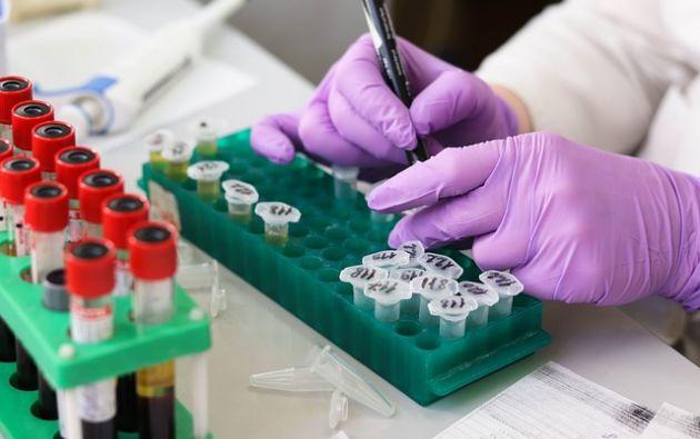 El tratamiento recluta células inmunes que ataquen el cáncer en el nicho metastático. Foto: Pixabay.