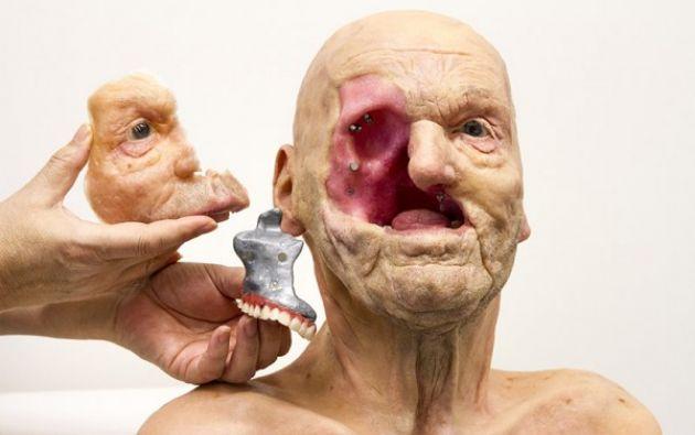 MODELO DE ANAPLASTOLOGÍA (prótesis de piel a medida) – Jan De Cubber