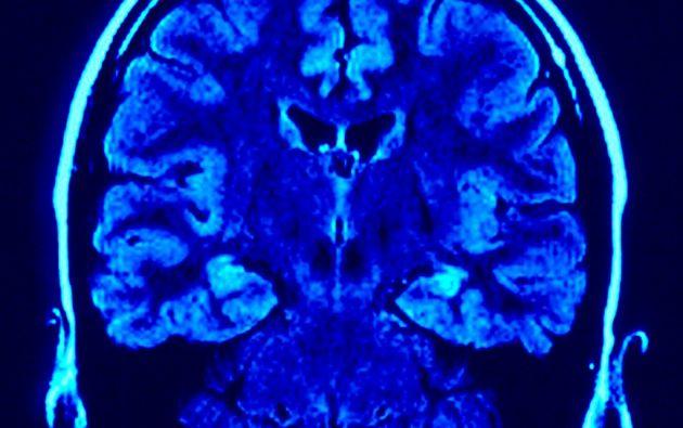 La estimulación intracraneal es un procedimiento quirúrgico por el que se implantan una serie de electrodos en el cerebro que liberan impulsos eléctricos para reducir la activación anormal de regiones cerebrales.