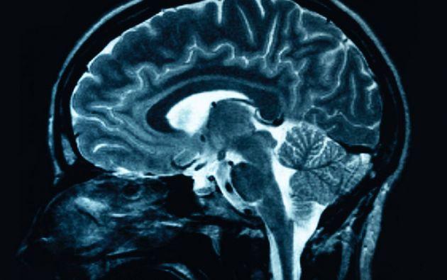 De acuerdo a un investigador, el hallazgo puede ser el primer paso para mejorar el pronóstico de esta enfermedad aparentemente incurable.