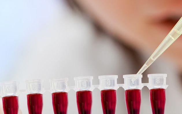 El estudio se basa en el análisis de los niveles de una proteína (CA125) presente en la sangre, que aumenta en caso de que la mujer padezca cáncer de ovarios.