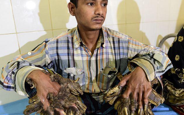 """El bangladesí apodado el """"hombre árbol"""" por sus impresionantes verrugas en las manos y pies fue intervenido quirúrgicamente con éxito."""