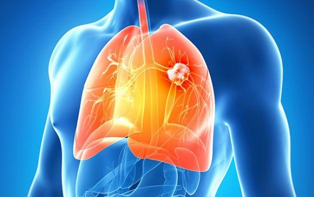 El 85% de los fumadores nunca desarrolla cáncer de pulmón y el 90% de los tumores de este tipo se da en gente que fuma.| Foto: Internet.