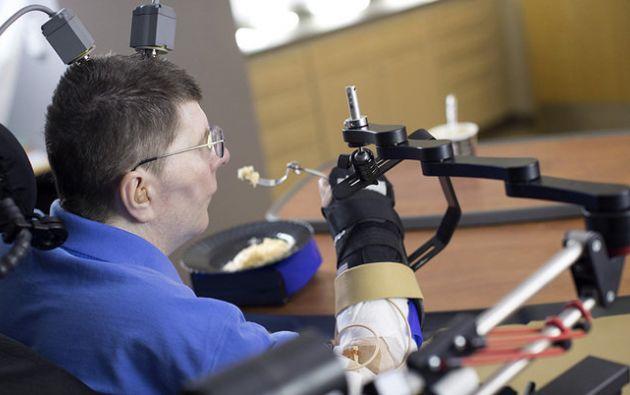 Con este dispositivo experimental, permite utilizar el brazo para beber un café, rascarse la nariz o comer un puré de patatas.| Foto: AFP