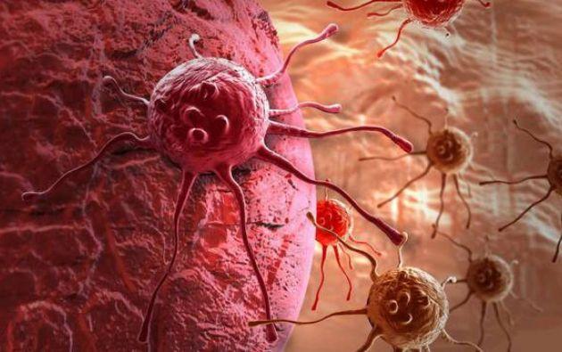 La metástasis es responsable de más del 90 % de las muertes por cáncer. Foto: Internet