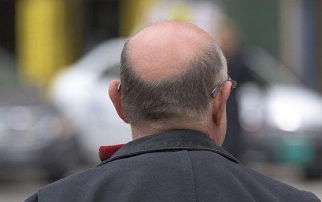 El procedimiento consiste en la obtención de tres tipos de células madre del cuero cabelludo a partir de folículos pilosos normales del paciente. Foto: Pixabay