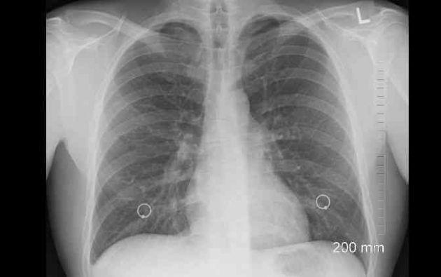 El de pulmón está considerado uno de los cánceres más comunes en el mundo y ocupa el primer lugar en incidencia y mortalidad a nivel global. Foto: Pixabay