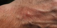 Hallan método para curar heridas sin dejar cicatrices.