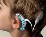 Es importante tratar a los niños con sordera congénita en sus primeros meses, antes de que sus circuitos cerebrales visuales y auditivos se reorganicen.  Foto: Internet