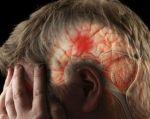 Los científicos ha sabido durante años que el cerebro sufre una licuefacción después de un derrame cerebral.