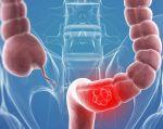 El cáncer de colon es un tipo de tumor maligno que se está haciendo más frecuente con 1,8 millones de casos anuales en el mundo, que aumentarán por la edad avanzada de la población y los hábitos poco saludables.