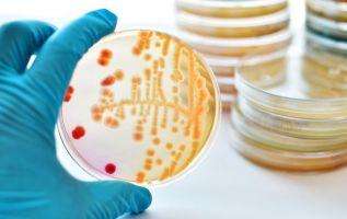 Un estudio de enero de 2016 determinó que hasta el 92 % de las bacterias resistentes a antibióticos pueden ser eliminadas de esta manera. Foto: Internet