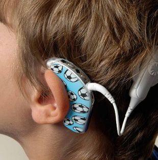 Es importante tratar a los niños con sordera congénita en sus primeros meses, antes de que sus circuitos cerebrales visuales y auditivos se reorganicen.| Foto: Internet