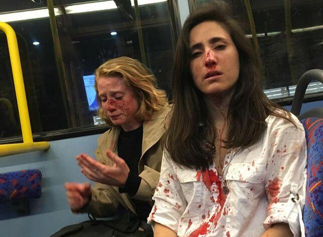 Las dos mujeres fueron atacadas cuando los varones se percataron de que eran pareja y les empezaron a increpar, pidiéndoles que se besaran y haciendo, al mismo tiempo, gestos sexuales hacia ellas.